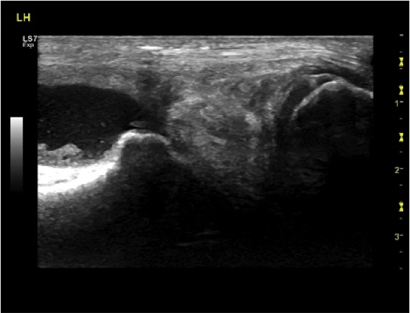 Ultrasound scan of medial meniscus of stifle revealing irregular medial meniscus